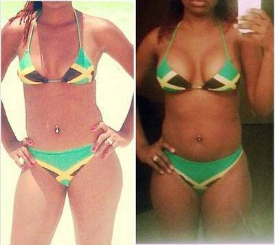 Natural looking breast augmentation photos before and after
