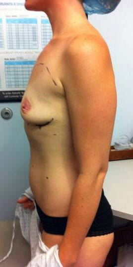 Natural looking breast augmentation photos before