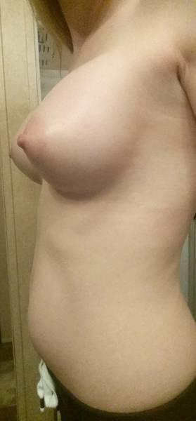 Natural looking breast augmentation photos top surgeons