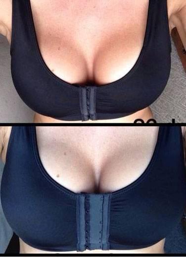The natural looking breast augmentation photos