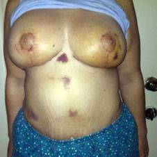 Breast augmentation infection pictures Calgary plastic surgeons pictures