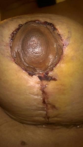 Breast augmentation infection pictures Utah top best surgeons pics
