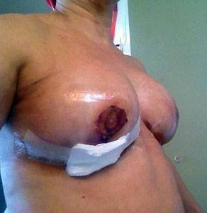 Breast augmentation infection pictures fluid