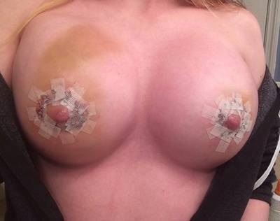 Breast augmentation infection pictures hematoma
