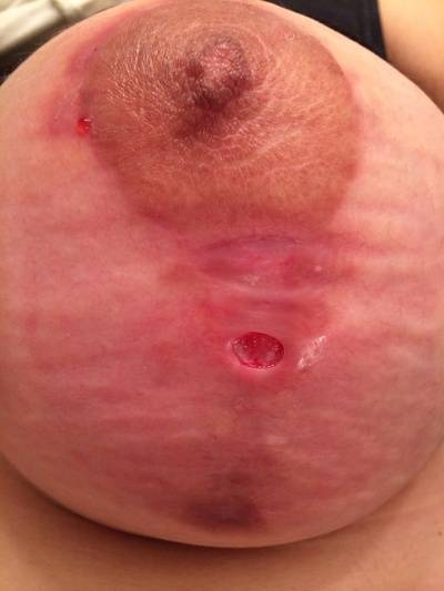 Breast augmentation infection pictures infected