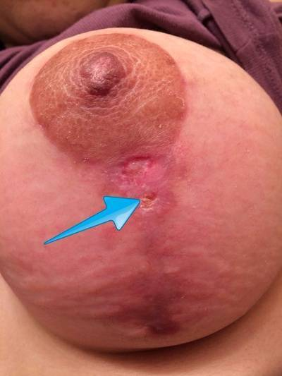 Breast augmentation infection pictures of okc pictures