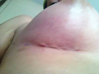 Breast augmentation infection pictures pain and tenderness