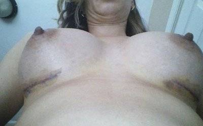 Breast augmentation infection pictures partial photo