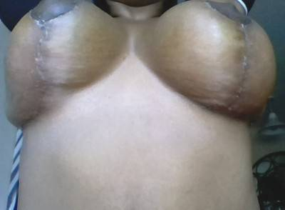 Breast augmentation infection pictures problem