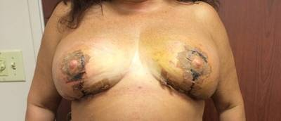 Breast augmentation infection pictures purulent discharge