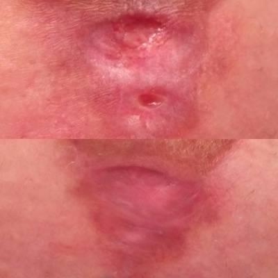 Breast augmentation infection pictures recovery snapshot