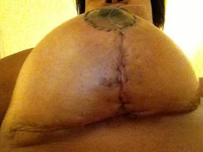 Breast augmentation infection pictures signs