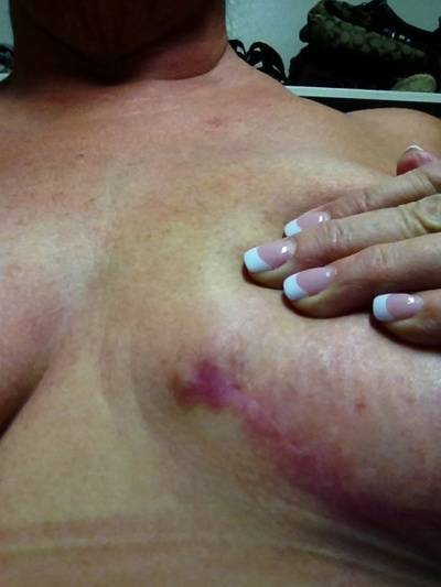 Breast augmentation infection pictures tenderness