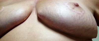 Breast implant lift or not
