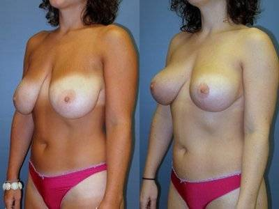 Breast lift procedures before and after