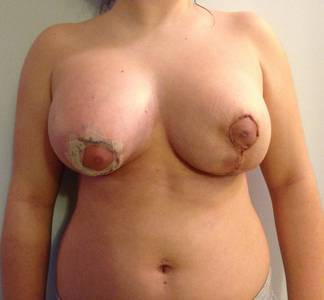 Breast lift with implants pictures of san antonio best surgeons
