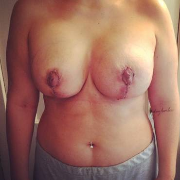 Breast lift with implants pictures okc pictures