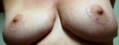Do breast implants lift