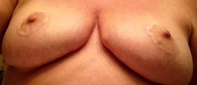 Does breast implant lift
