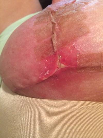 Infection breast augmentation operation