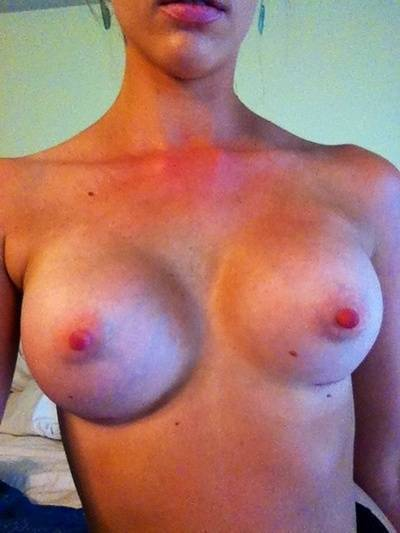Asymmetry after breast augmentation photos