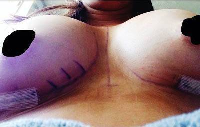 Best Breast Enhancement In Florida is the surgical procedure used to increase the volume of the breasts