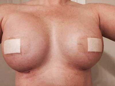 Boob Job is usually performed in our state-of-the-art outpatient surgical setting under general anesthesia with the patient asleep