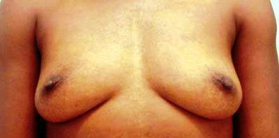 Breast Augmentation Lift In TX If Your breasts have become smaller andor have lost their firmness or shape after weight loss or giving birth