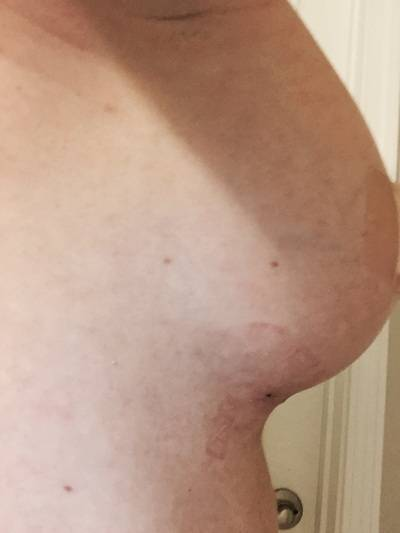 Breast Enhancement In Omaha is a surgical procedure to increase the size and enhance the shape of the breasts with the use of implants