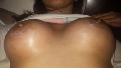 Breast Enlargement In Colorado is the most common plastic surgery procedure performed