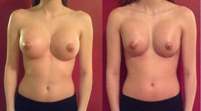 Breast Enlargement In Waterloo makes it possible to increase your breasts a cup size or more.