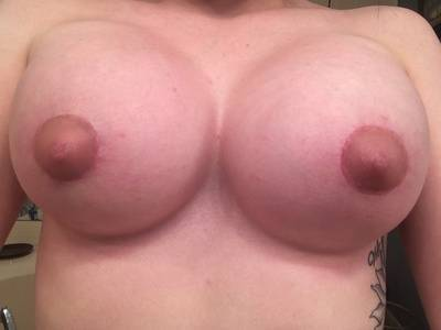 Breast Lift Results Tennessee to correct asymmetry or to balance the proportions of the body