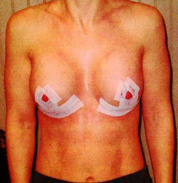 Breasts Implants Bakersfield, CA have one of the highest patient satisfaction rates in plastic surgery