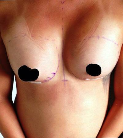 FL, USA Silicone Breast Implant can enhance appearance and self-esteem