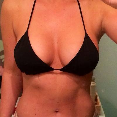 High Profile Breast Implants Costs In MB, Canada