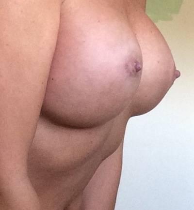 Large Breast Implant Prices In Nebraska, United States