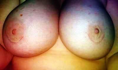Miami, Florida, United States Best Breast Enlargement