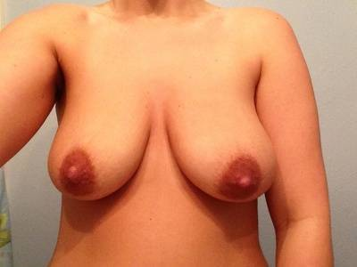 Newport Beach Enlarge Breast for enhancing your body contours