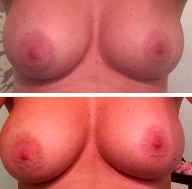Omaha, Nebraska Silicone Breast Augmentation is a surgical option to repair and offset the effects of a mastectomy