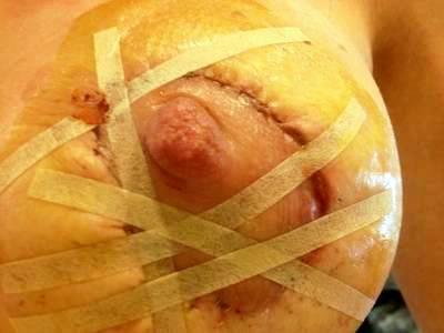 Photo of bad breast augmentation