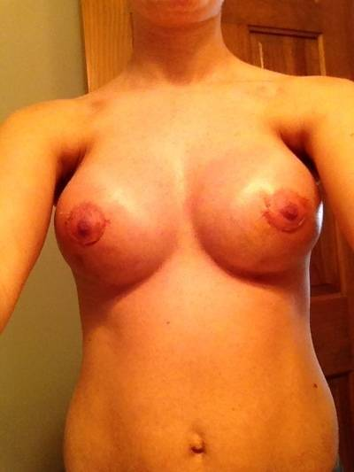 Plastic Breast Price In TN If you are dissatisfied with your breast size
