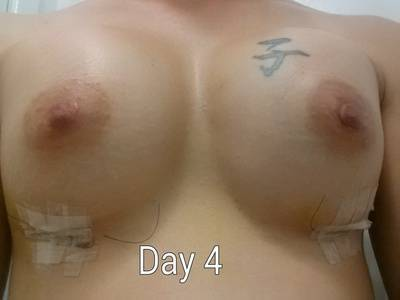 Small Breast Implants Dr Prices In Omaha, NE, USA