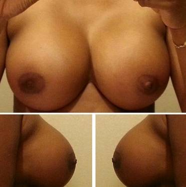 Surgery For Breast Implants Prices In Omaha