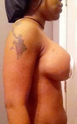 Transumbilical Breast Augmentation Surgeons Of Texas