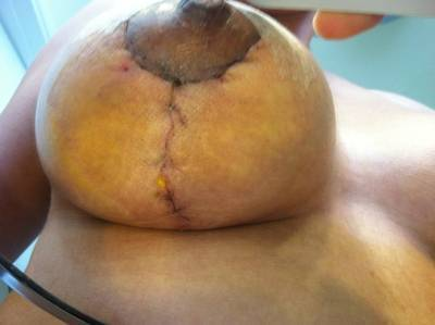 breast augmentation gone wrong photo
