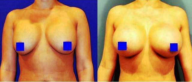 breast implants capsular contracture before and after photos