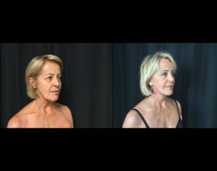 Full Face Lift Results With Dr Richard Rosenblum, Md -8686